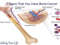 7 Signs That You Have Bone Cancer