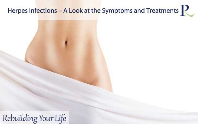Herpes Infections – A Look at the Symptoms and Treatments