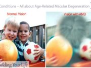Eye Conditions – All about Age-Related Macular Degeneration