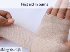 First aid in burns