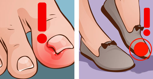 How to prevent ingrown nails